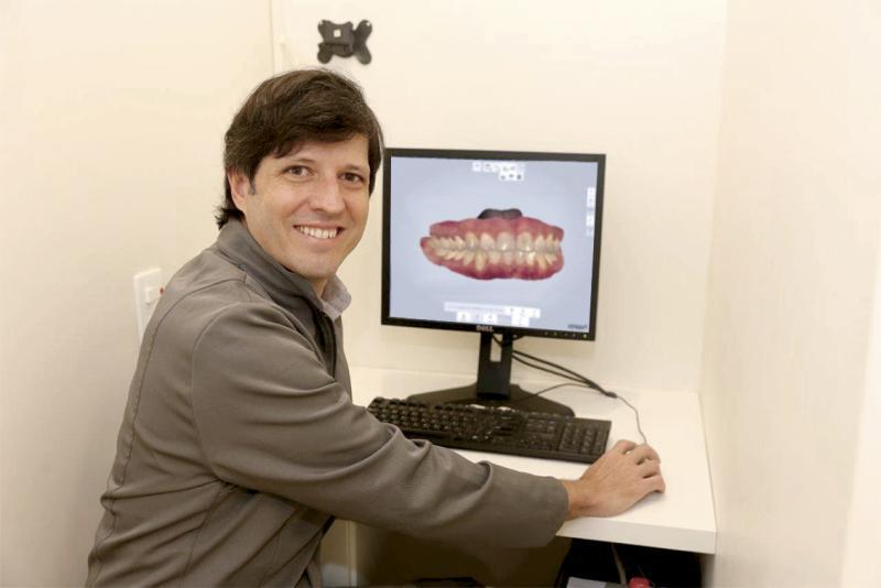 Dr. Fernando Junqueira Leite e a auto definição do scanner intraoral.